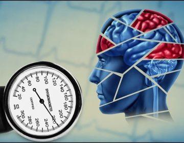 ادھیڑ عمری میں ہائی بلڈ پریشر سے دماغی بیماریوں کا خطرہ بڑھ جاتا ہے، تحقیق